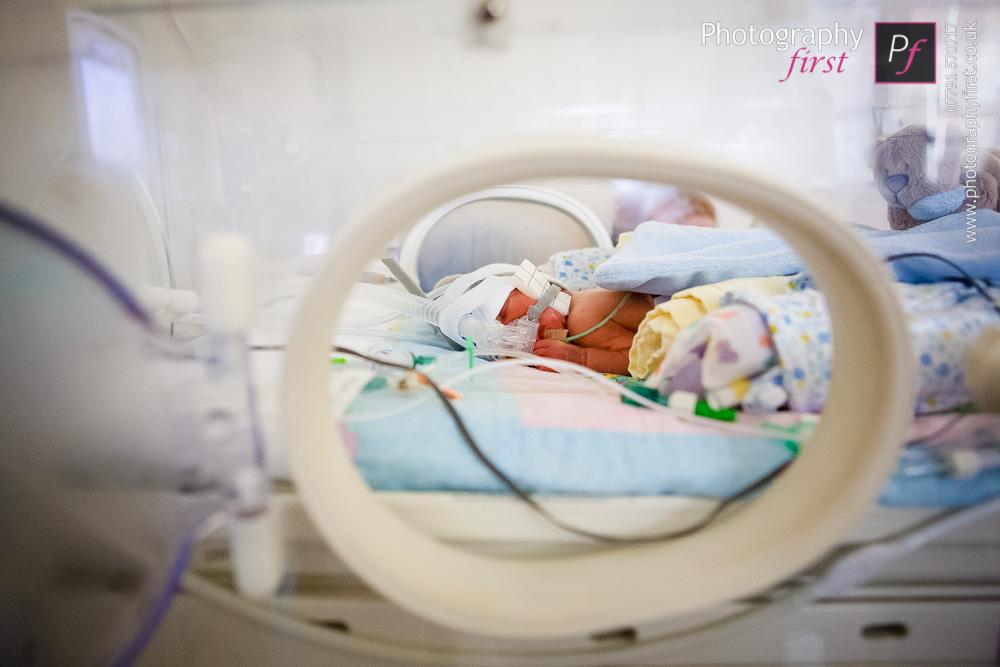 Premature Baby (6)